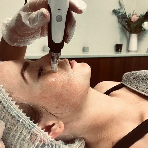Medical Needling |  Collagen Induction Therapy